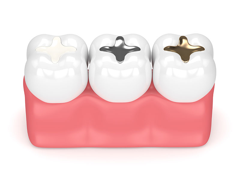 Dental Fillings Roseville