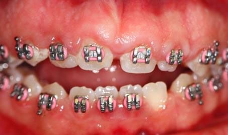 Gingivectomy Roseville Case Study 1