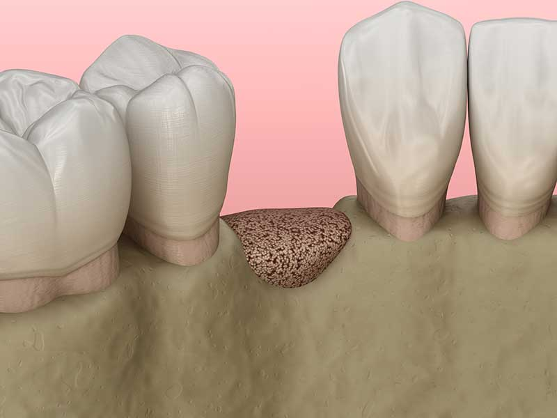 Bone Regeneration Roseville